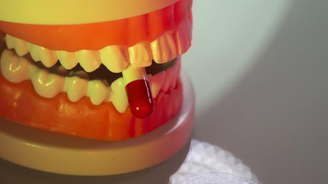 3. kerusakan pada gigi