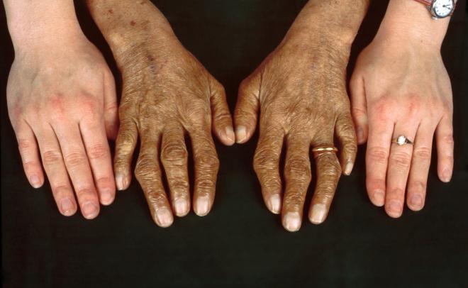 4. Hemochromatosis